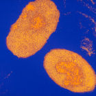 The Bordetella pertussis bacterium