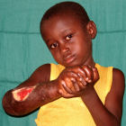 Child with buruli ulcer