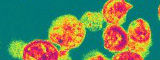 HIV particles;R Dourmashkin/Wellcome Images