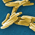 Mycobacterium tuberculosis bacteria