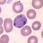 A P. vivax parasite amidst normal red blood cells in a thin blood smear