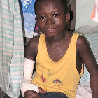 A boy with Buruli ulcer in Ghana