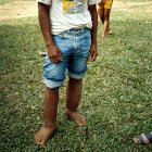 Boy with filariasis