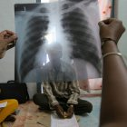X-ray of patient with TB